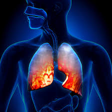 INFECTIOUS LUNGS DISEASES