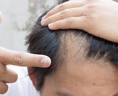 HOW MANY TIMES THE FALLEN HAIRS GERMINATE?