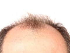 WHY WOMEN ARE NOT AFFECTED BY BALDNESS? IS THERE CHANCE FOR HAIR-GROWTH IN THE BALD HEAD OF MEN?