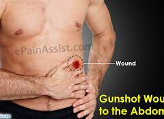 IF BULLET FLOWS ON THE STOMACH, BLOOD COMES OUT FROM THE MOUTH